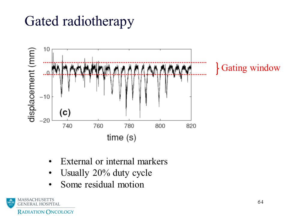 Gated radiotherapy Gating window External or internal markers