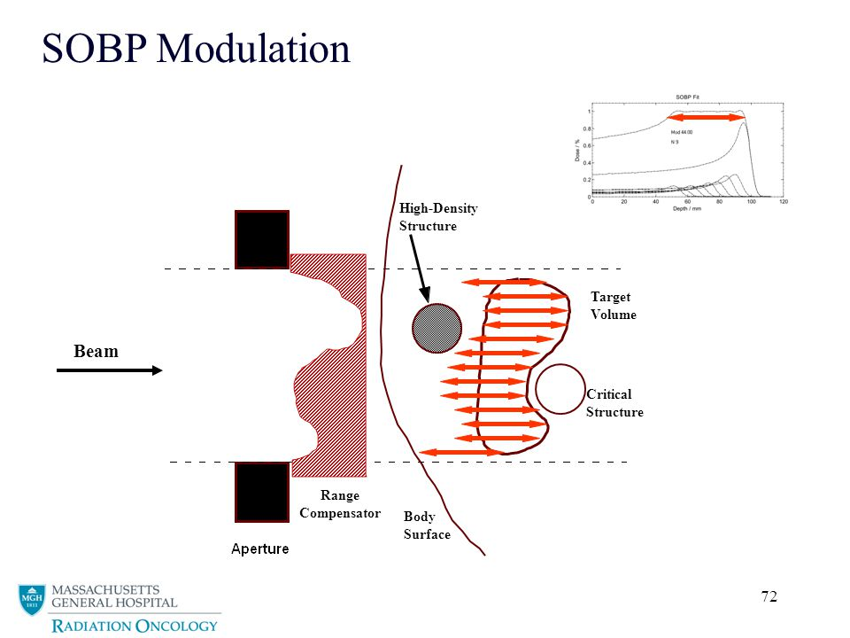 SOBP Modulation Beam High-Density Structure Target Volume Critical