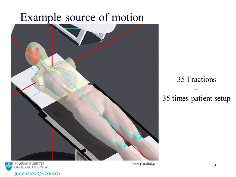 Example source of motion