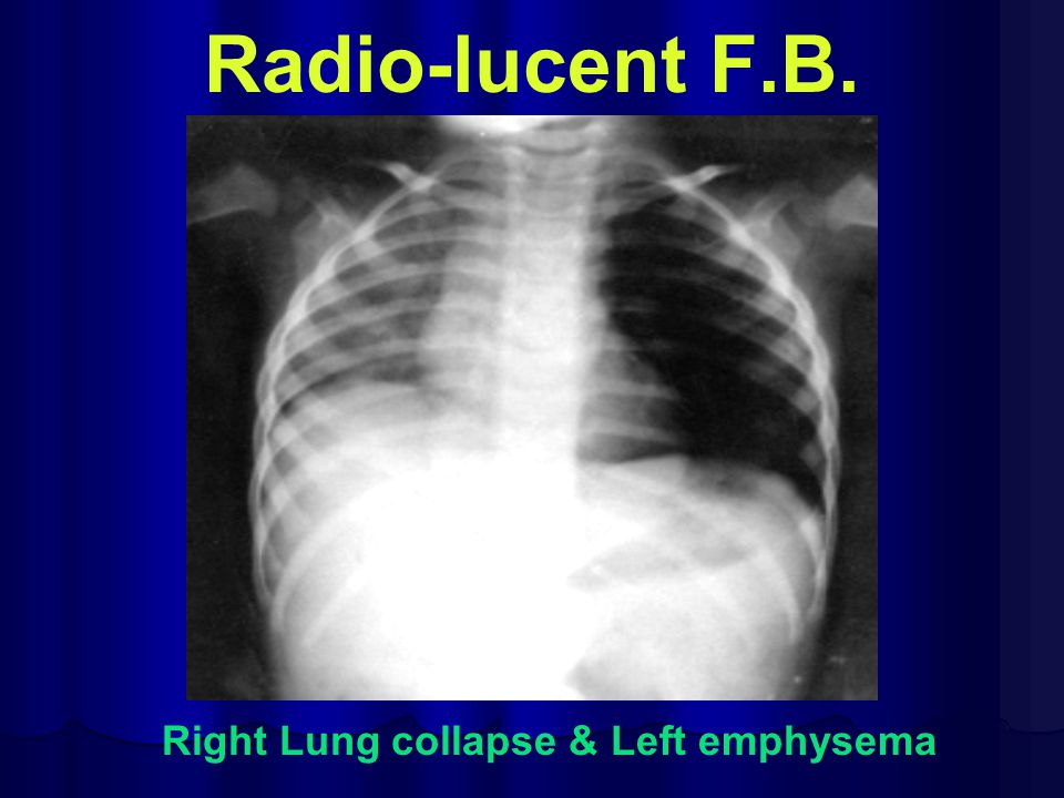 Right Lung collapse & Left emphysema