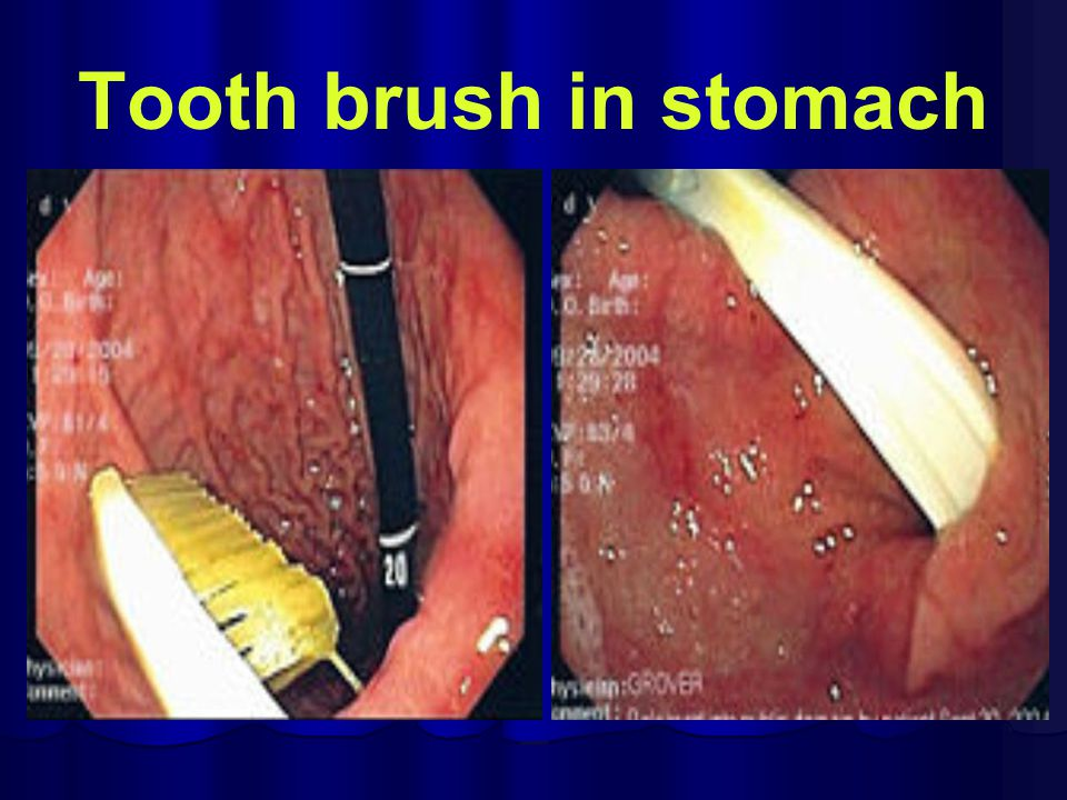 Tooth brush in stomach