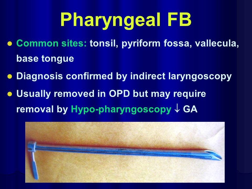 Pharyngeal FB Common sites: tonsil, pyriform fossa, vallecula, base tongue. Diagnosis confirmed by indirect laryngoscopy.