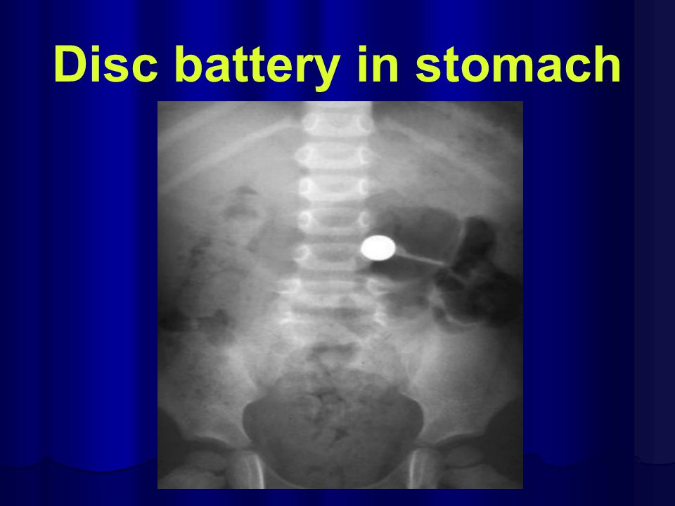 Disc battery in stomach