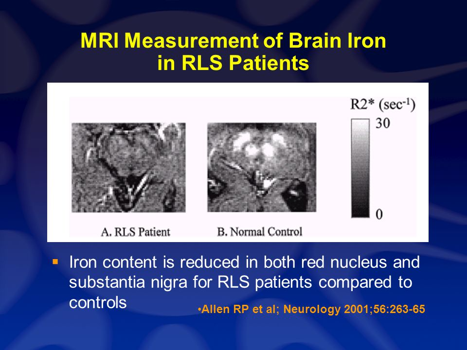 Impaired Brain Iron Acquisition in Restless Legs Syndrome: Neuropathologic Examination