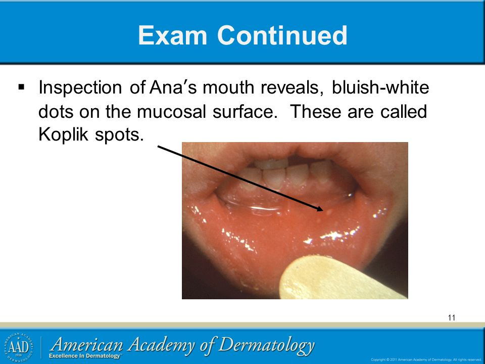 Exam Continued Inspection of Ana's mouth reveals, bluish-white dots on the mucosal surface.