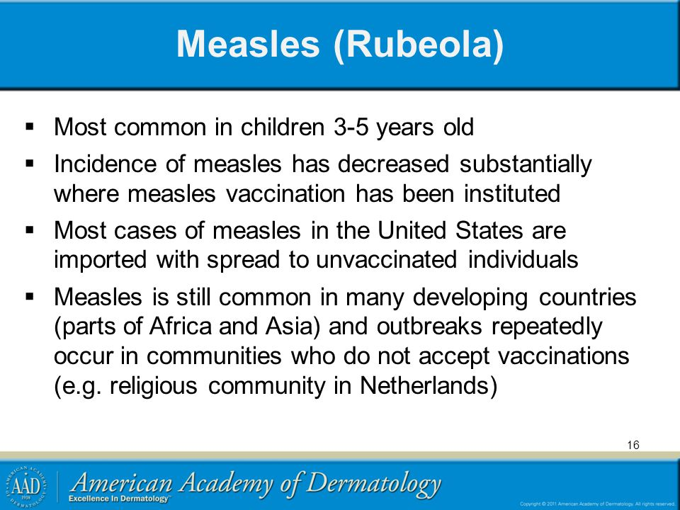 Measles (Rubeola) Most common in children 3-5 years old