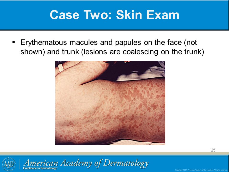 Case Two: Skin Exam Erythematous macules and papules on the face (not shown) and trunk (lesions are coalescing on the trunk)