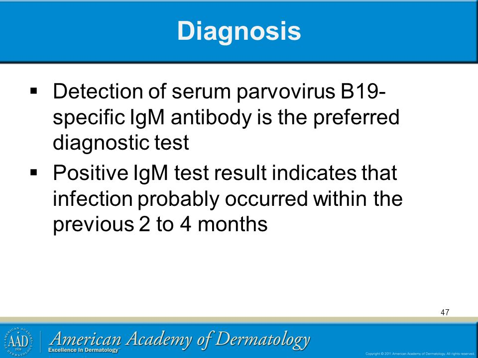 Diagnosis Detection of serum parvovirus B19-specific IgM antibody is the preferred diagnostic test.