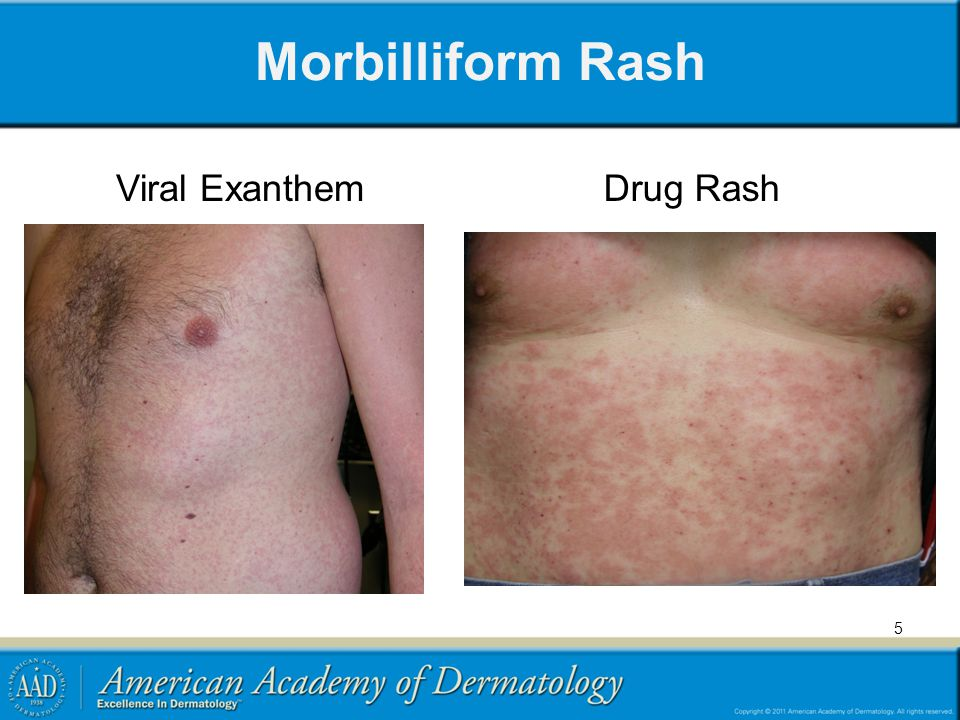Morbilliform Rash Viral Exanthem Drug Rash