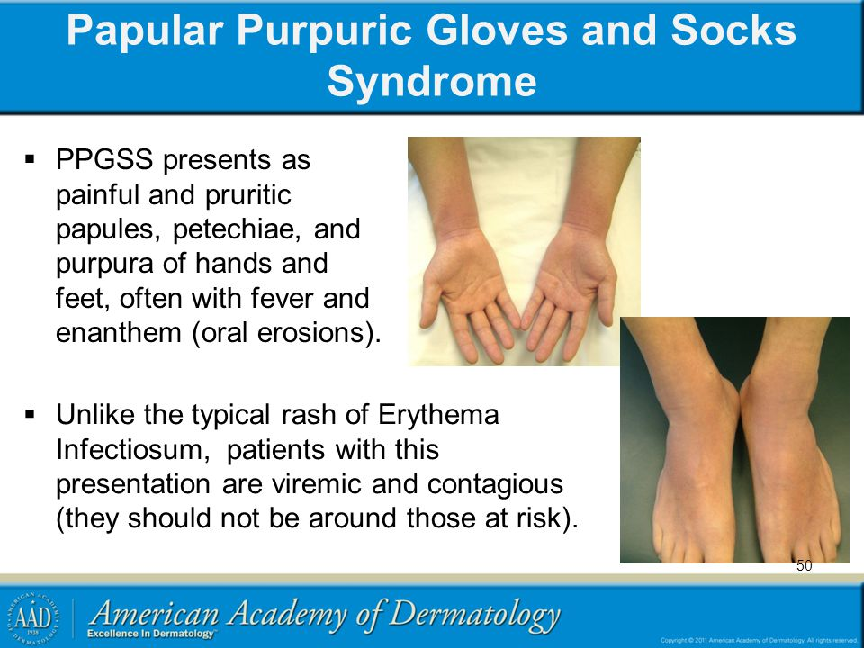 Papular Purpuric Gloves and Socks Syndrome