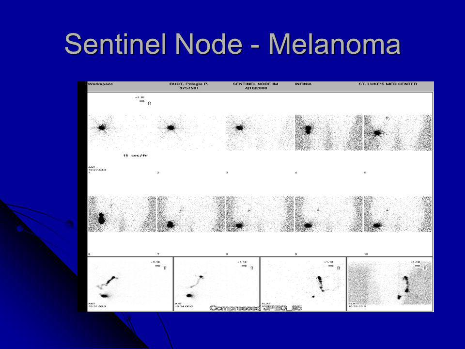 Sentinel Node - Melanoma