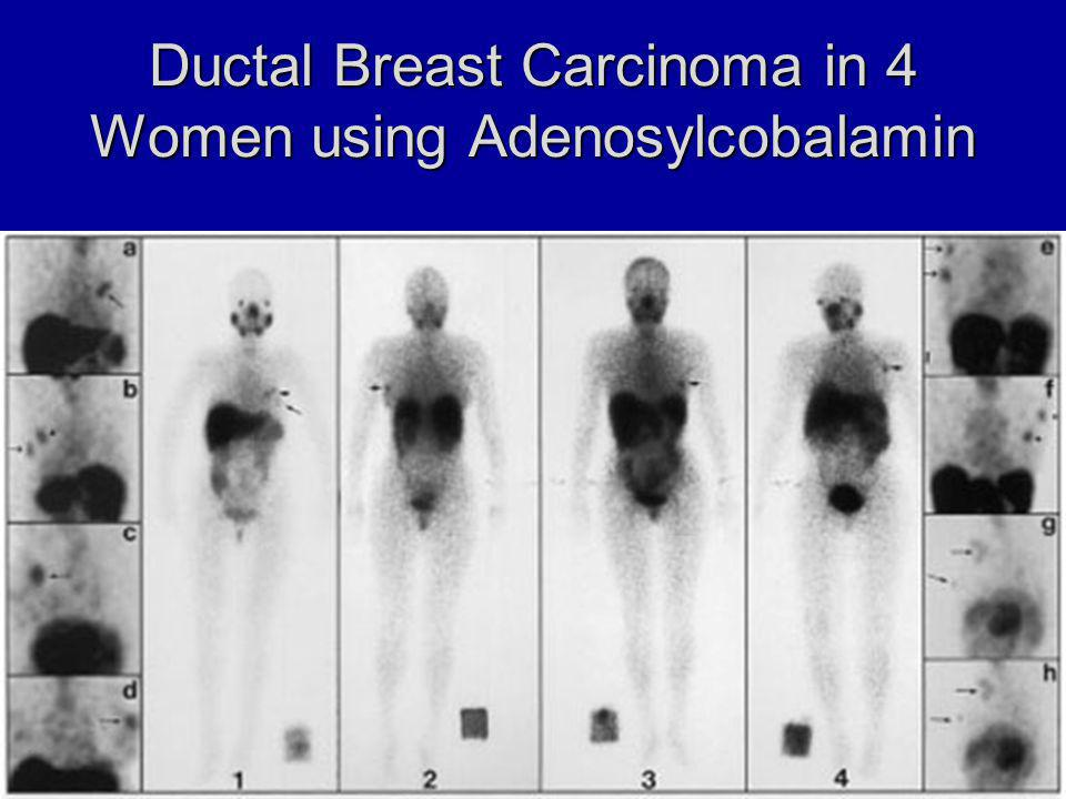 Ductal Breast Carcinoma in 4 Women using Adenosylcobalamin
