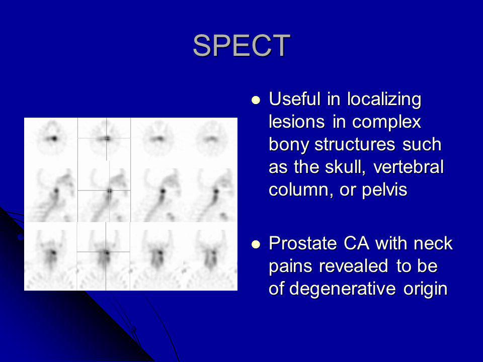 SPECT Useful in localizing lesions in complex bony structures such as the skull, vertebral column, or pelvis.