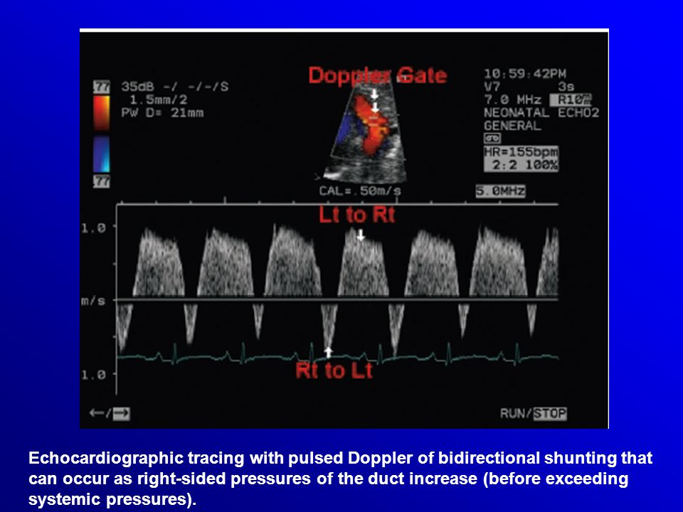 Echocardiographic tracing with pulsed Doppler of bidirectional shunting that can occur as right-sided pressures of the duct increase (before exceeding systemic pressures).