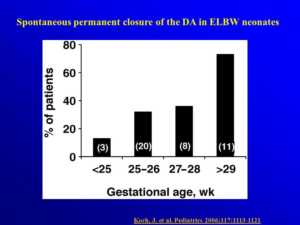 Spontaneous permanent closure of the DA in ELBW neonates