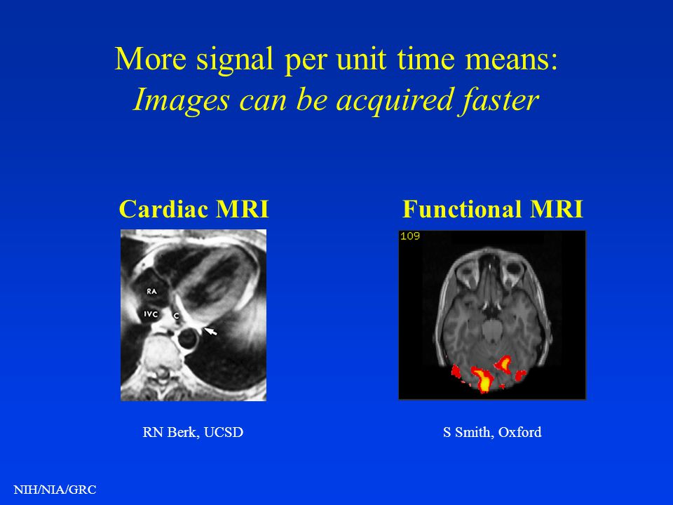 More signal per unit time means: Images can be acquired faster