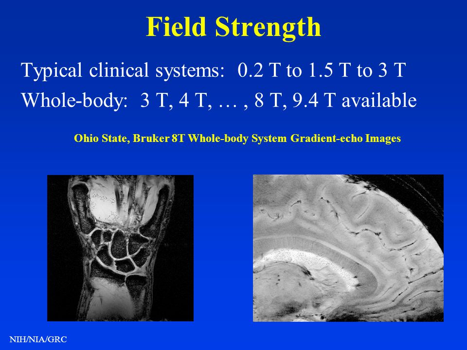 Field Strength Typical clinical systems: 0.2 T to 1.5 T to 3 T