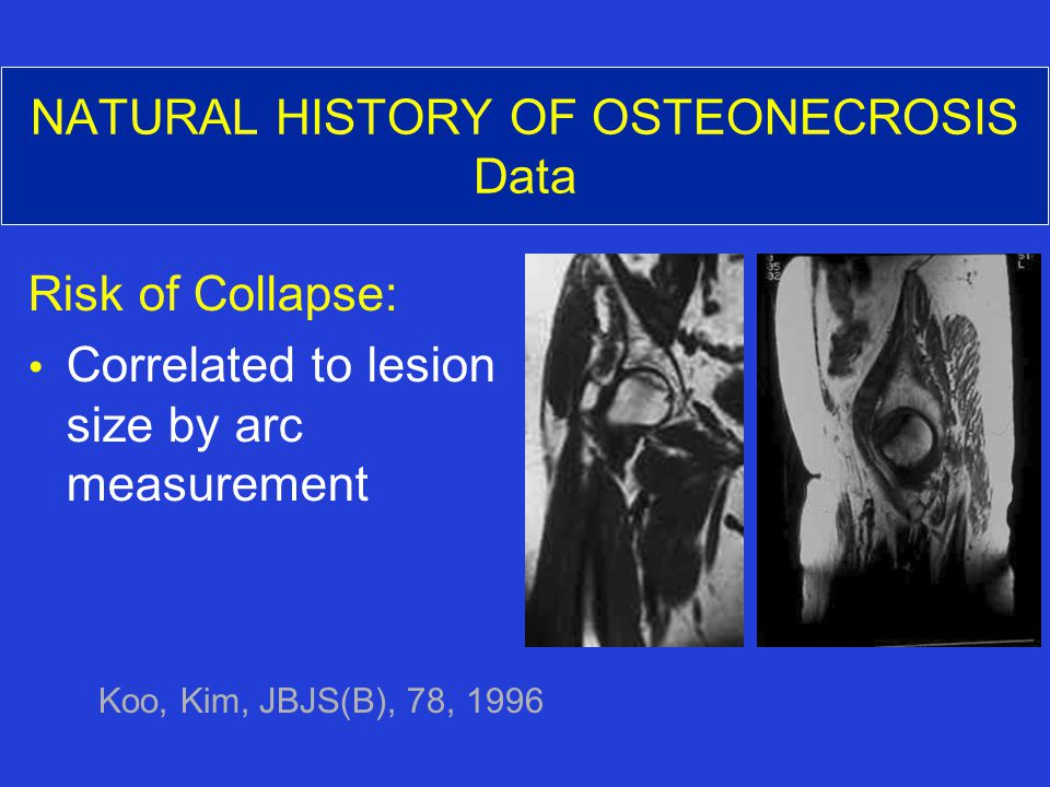 NATURAL HISTORY OF OSTEONECROSIS Data