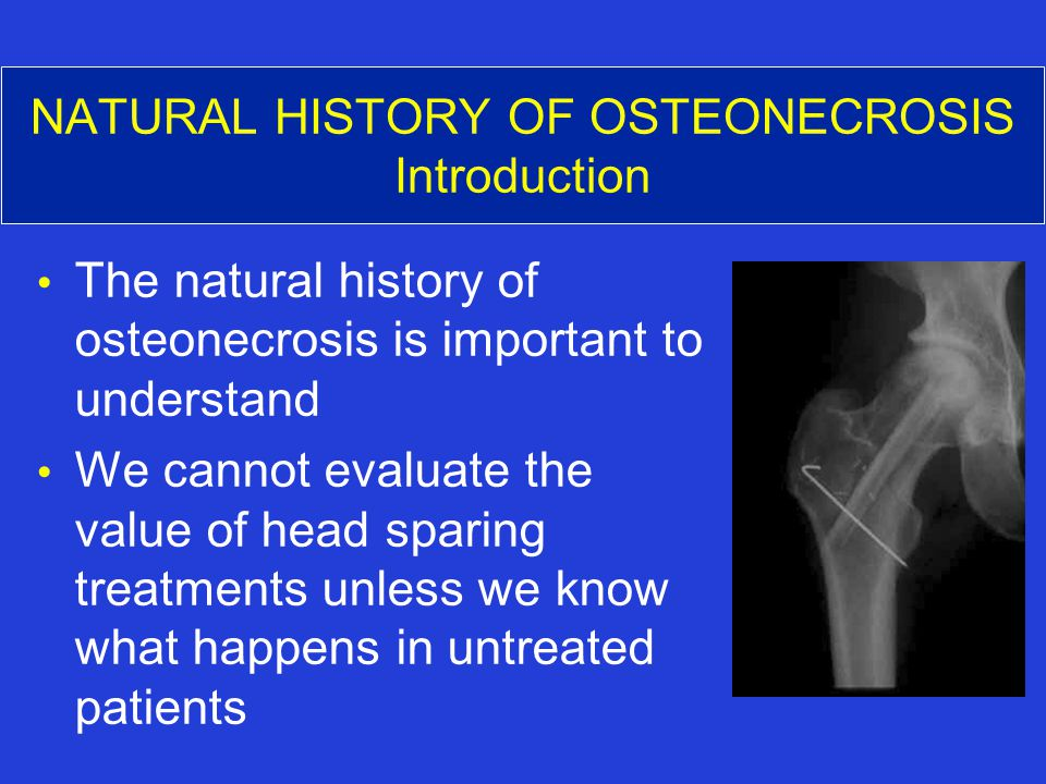 NATURAL HISTORY OF OSTEONECROSIS Introduction