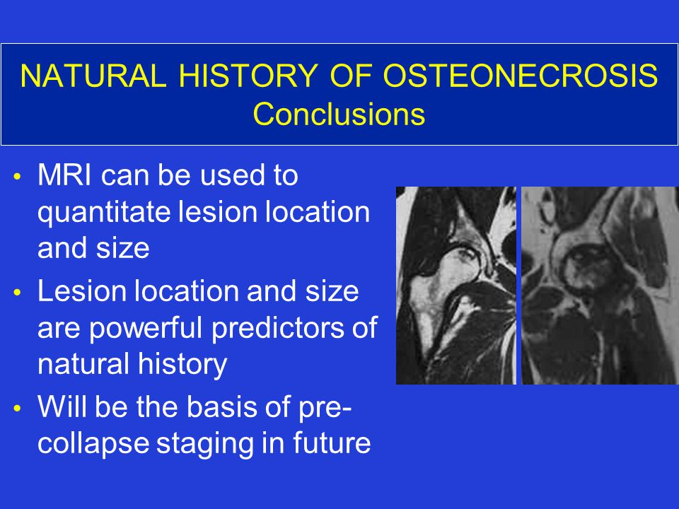 NATURAL HISTORY OF OSTEONECROSIS Conclusions