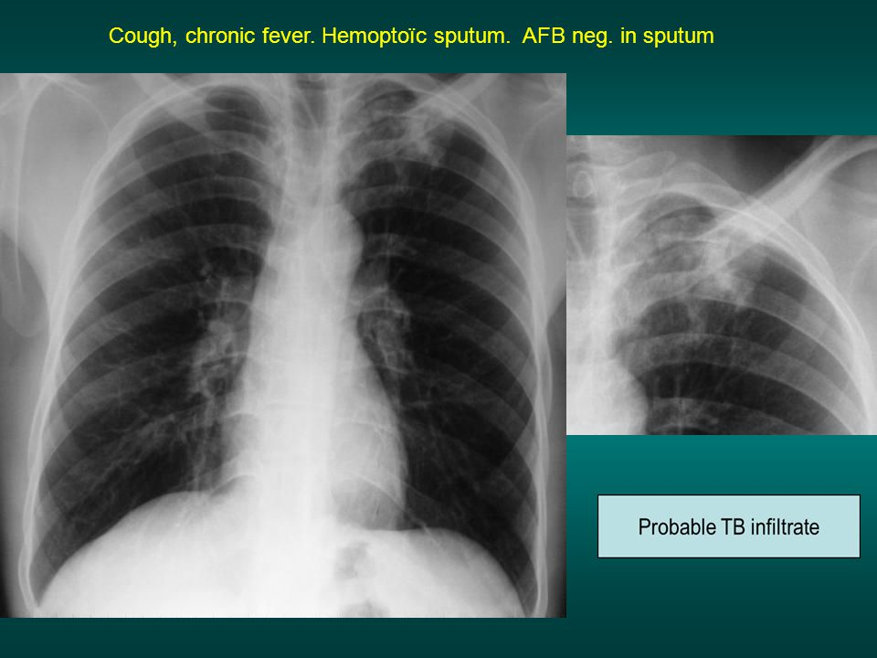 Cough, chronic fever. Hemoptoïc sputum. AFB neg. in sputum