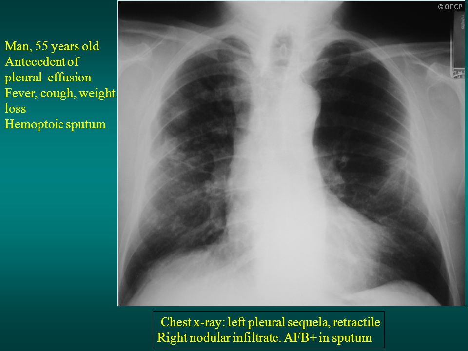 Man, 55 years old Antecedent of pleural effusion. Fever, cough, weight loss. Hemoptoic sputum. Chest x-ray: left pleural sequela, retractile.