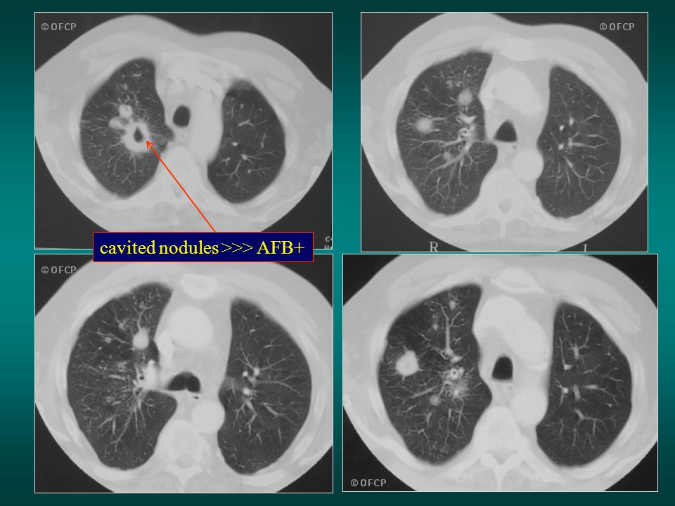 cavited nodules >>> AFB+
