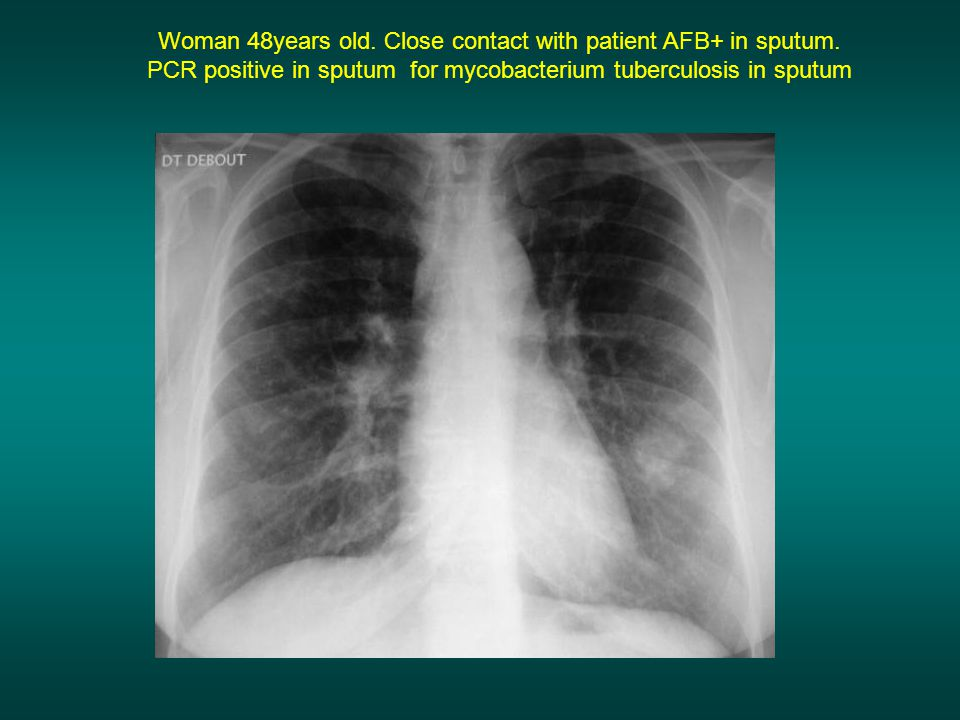 Woman 48years old. Close contact with patient AFB+ in sputum.