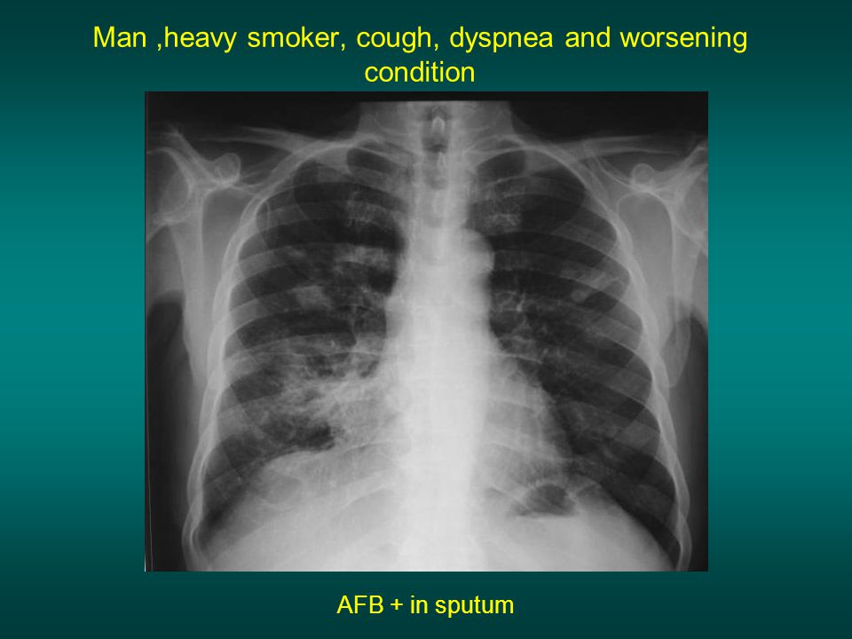 Man ,heavy smoker, cough, dyspnea and worsening condition