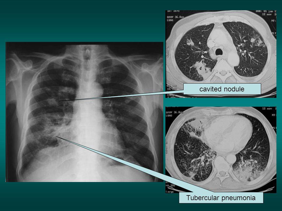 cavited nodule Tubercular pneumonia