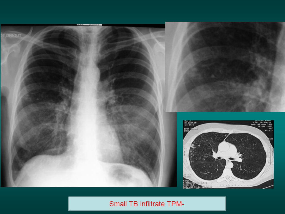 Small TB infiltrate TPM-