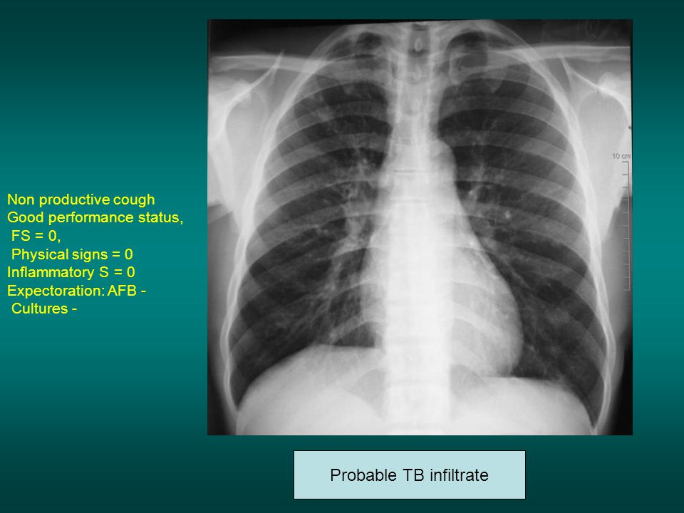 Probable TB infiltrate