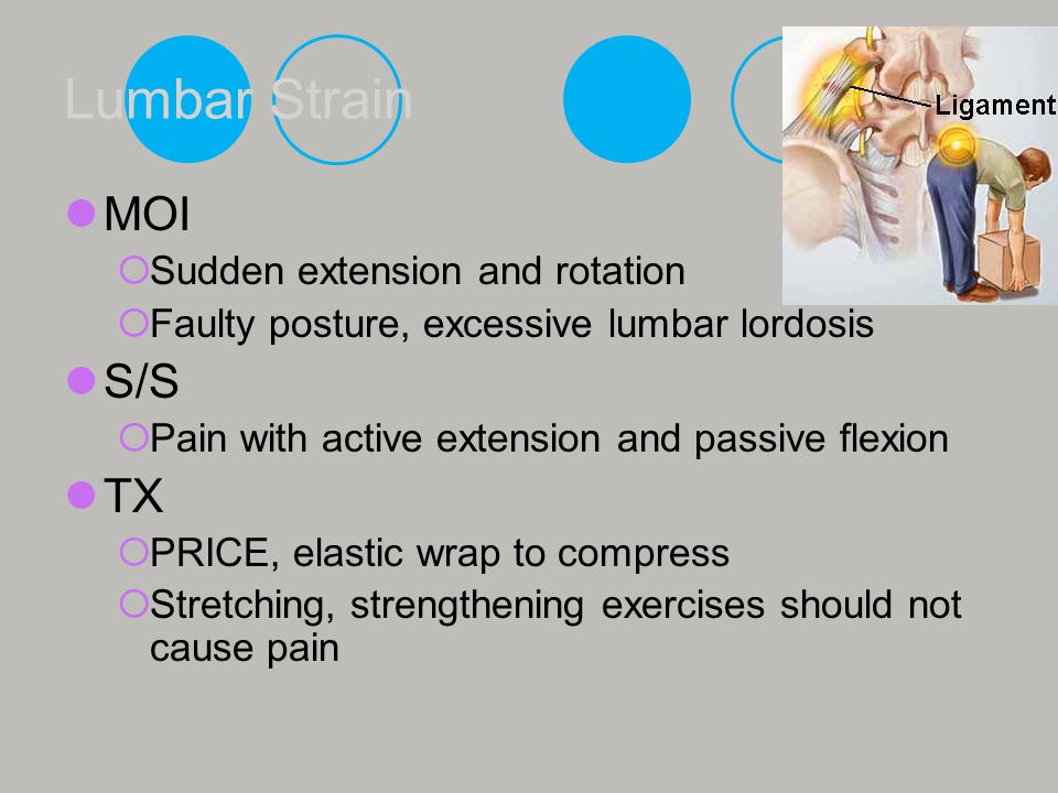 Lumbar Strain MOI S/S TX Sudden extension and rotation