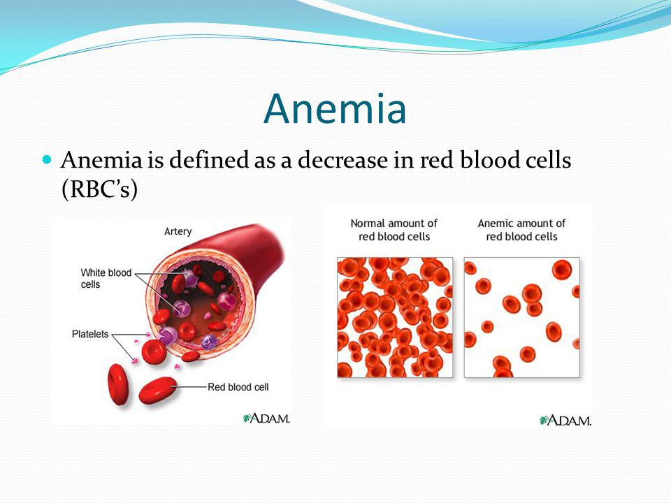 Anemia Anemia is defined as a decrease in red blood cells (RBC's)