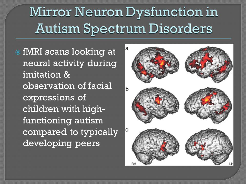 Mirror Neuron Dysfunction in Autism Spectrum Disorders