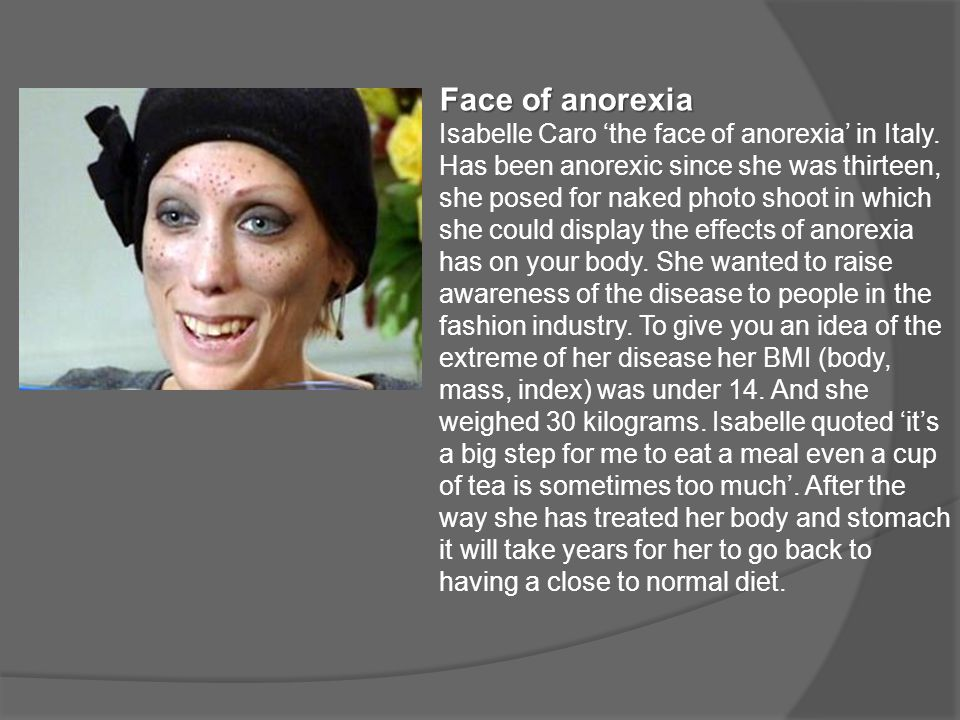 Face of anorexia Isabelle Caro 'the face of anorexia' in Italy