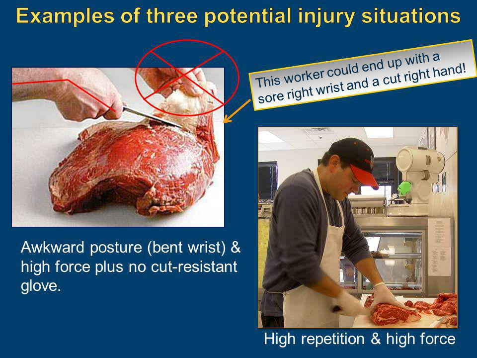 Examples of three potential injury situations