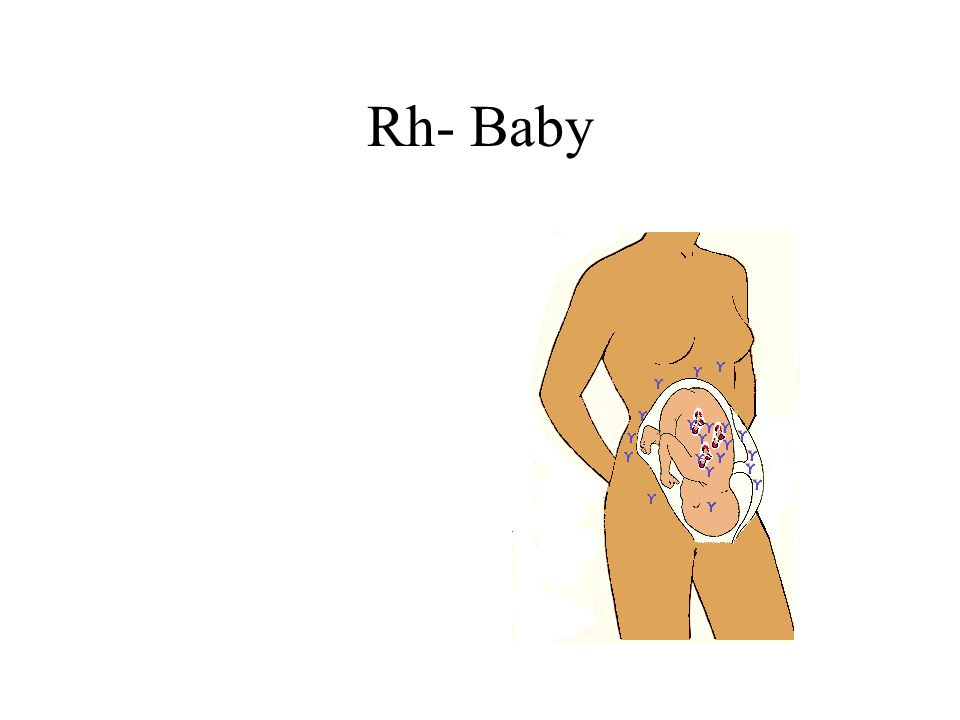 Rh- Baby