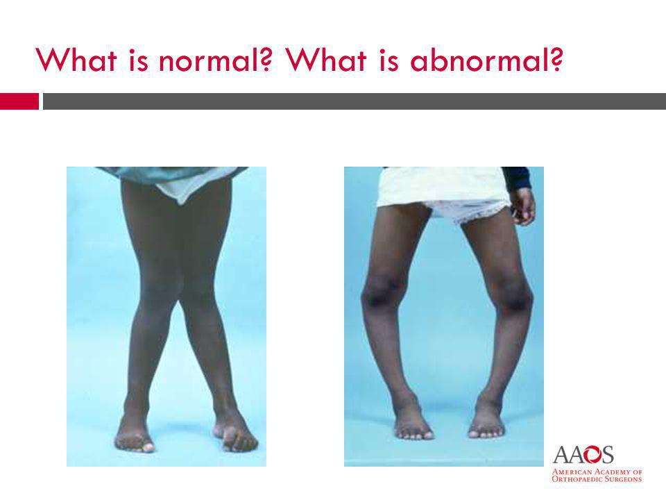 What is normal What is abnormal