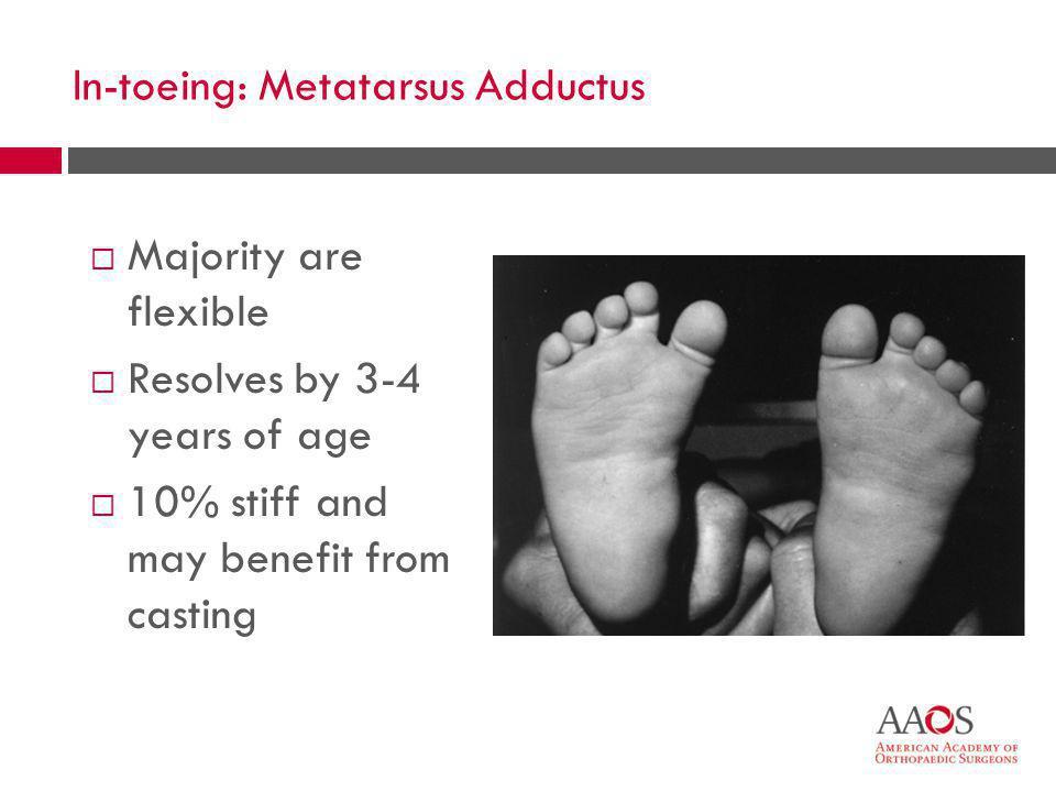 In-toeing: Metatarsus Adductus