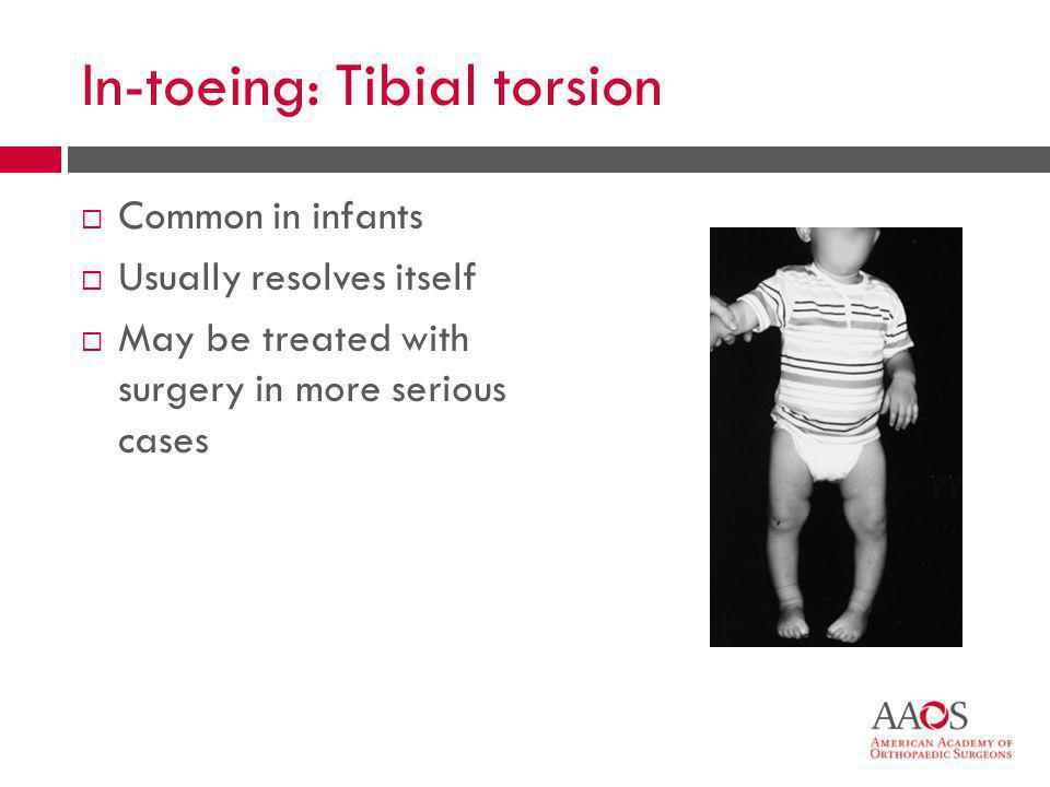 In-toeing: Tibial torsion