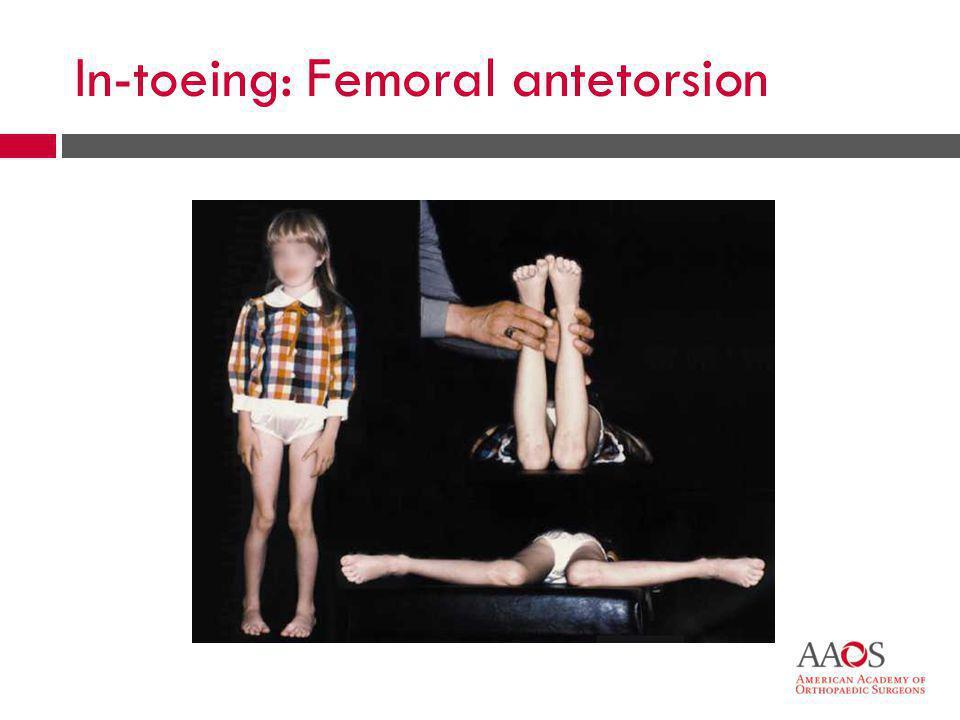 In-toeing: Femoral antetorsion