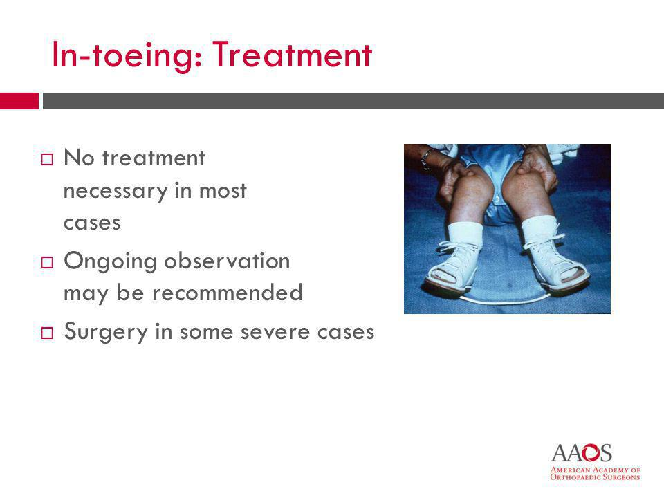 In-toeing: Treatment No treatment necessary in most cases