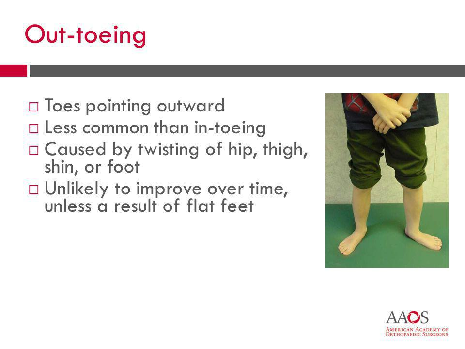 Out-toeing Toes pointing outward Less common than in-toeing