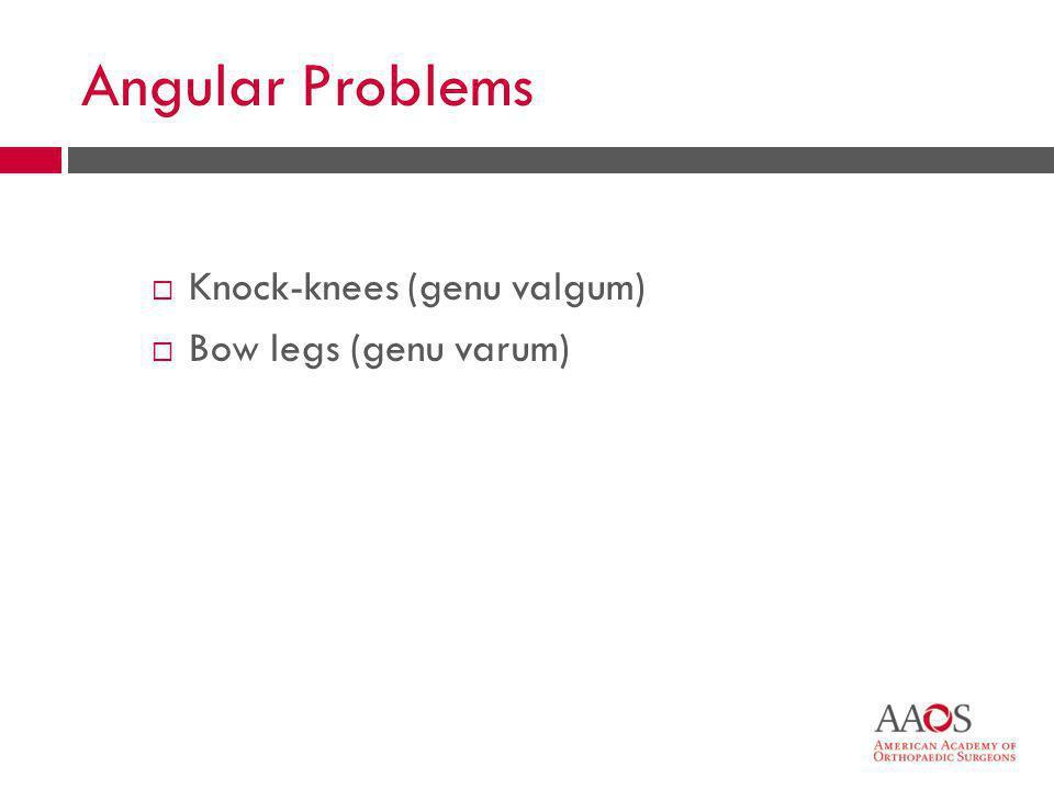 Angular Problems Knock-knees (genu valgum) Bow legs (genu varum)