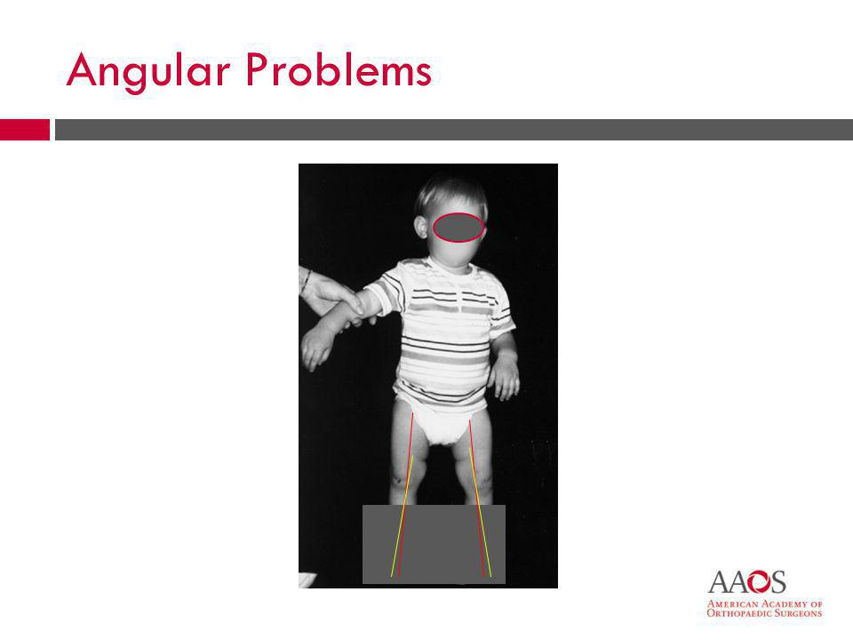 Angular Problems Often times the visual impression is worse than the reality of the condition.