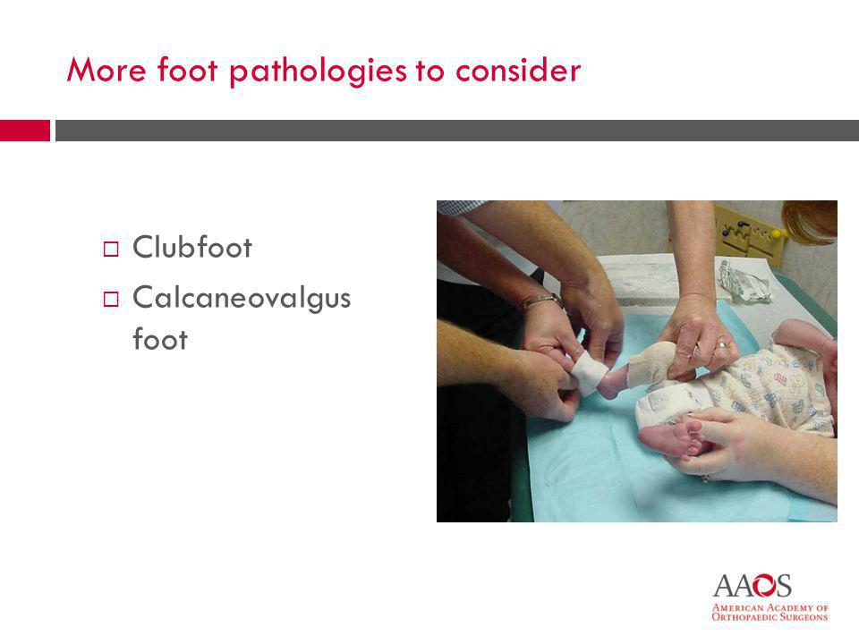 More foot pathologies to consider