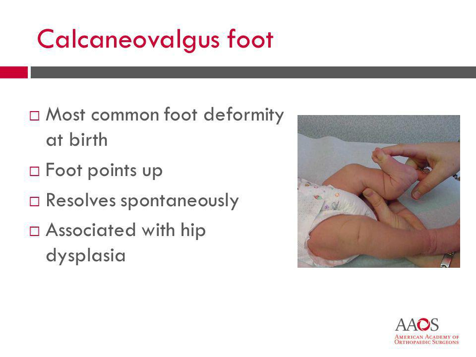 Calcaneovalgus foot Most common foot deformity at birth Foot points up