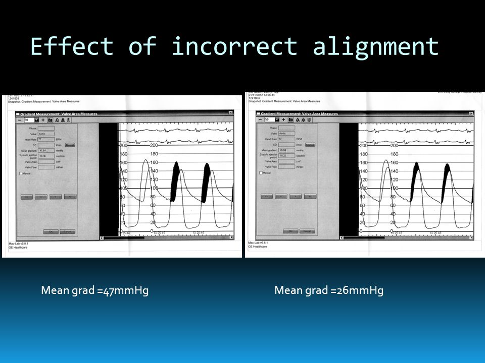 Effect of incorrect alignment