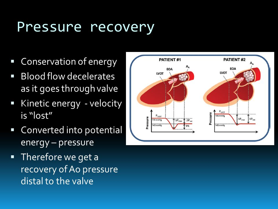 Pressure recovery Conservation of energy